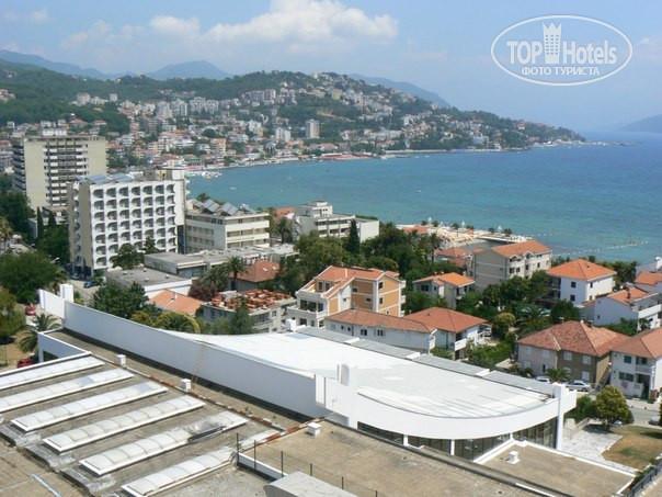 Игало санаторий черногория отзывы